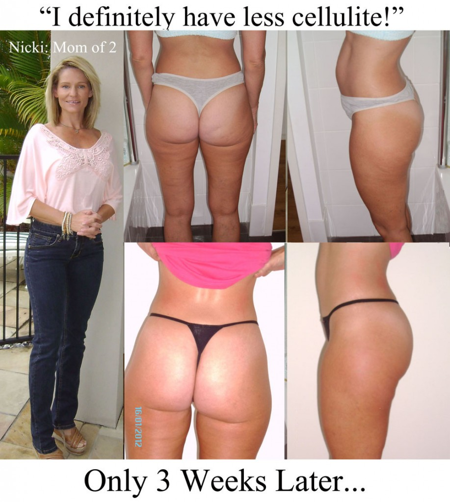 Nicki's Proof of Cellulite Reduction at 3 Weeks